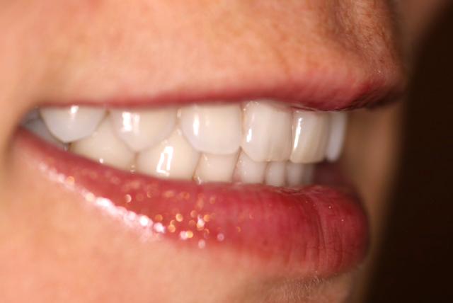 Shade taking in Dental Art